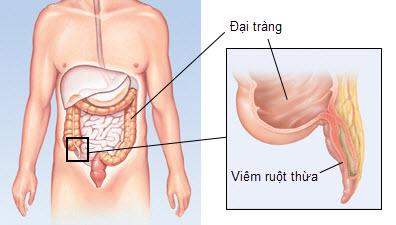 Kết quả hình ảnh cho Bệnh viêm ruột thừa ở trẻ em