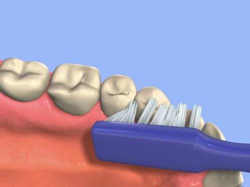 Kết quả hình ảnh cho Khô răng miệng không phải là một phần bình thường