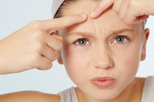 Mụn – nguyên nhân và cách khắc phục cho làn da của chị em