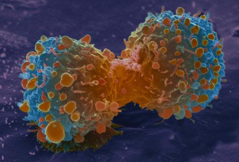 Toàn cảnh về bệnh ung thư phổi