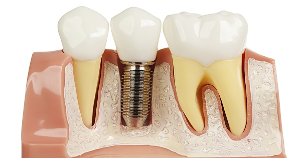Kết quả hình ảnh cho chất lượng răng implant quyết định khả năng