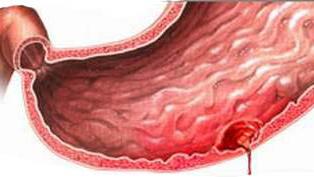 Kết quả hình ảnh cho xuất huyết tiêu hóa