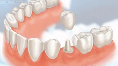 Kết quả hình ảnh cho Màu sắc tự nhiên của răng người