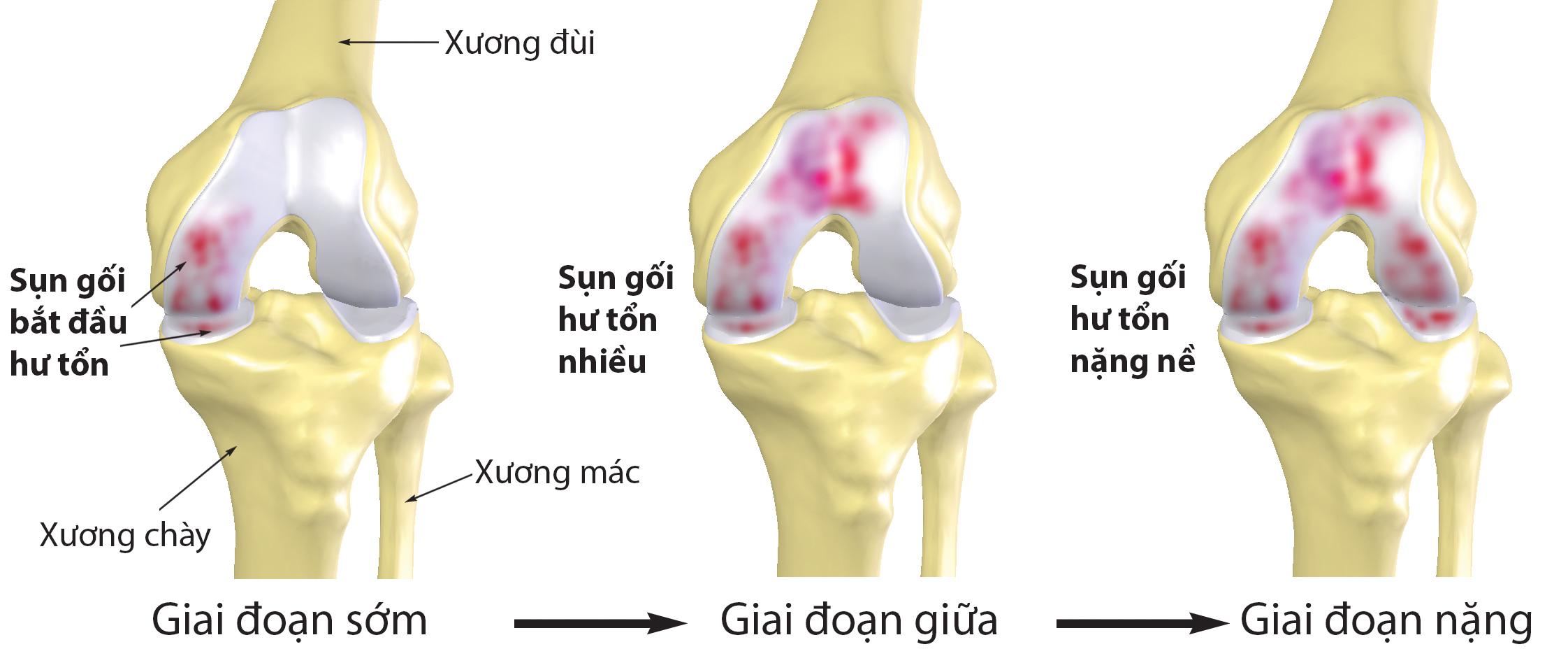 Bệnh thoái hóa xương sụn cột sống ở trẻ em